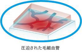 圧迫された毛細血管