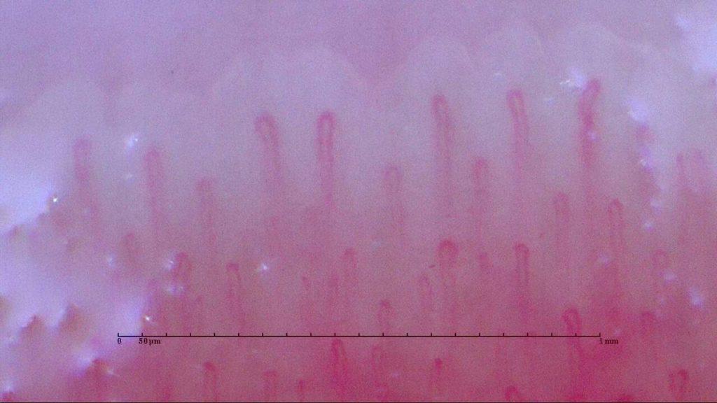 血流 マイクロスコープwellness撮影画像