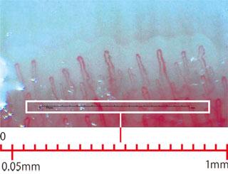 毛細血管の直径